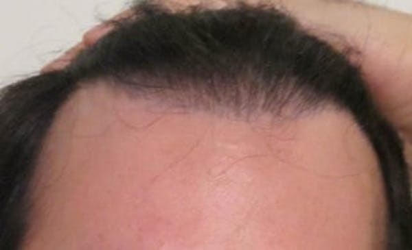 Hair Transplant Gallery - Patient 25274668 - Image 1