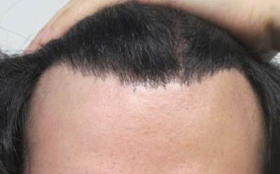 Hair Transplant Gallery - Patient 25274668 - Image 2