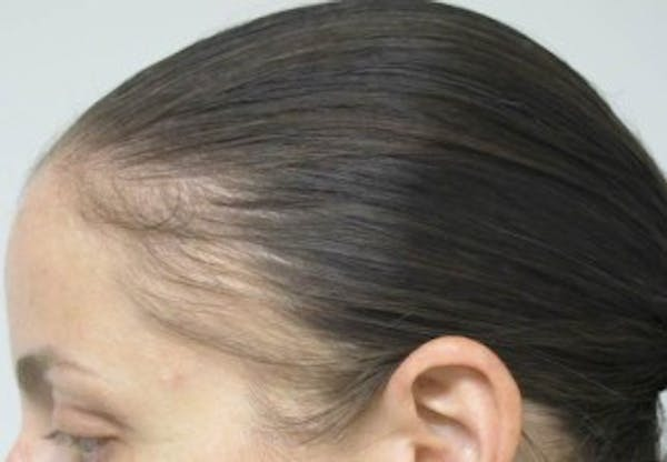 Hair Transplant Gallery - Patient 25274669 - Image 1