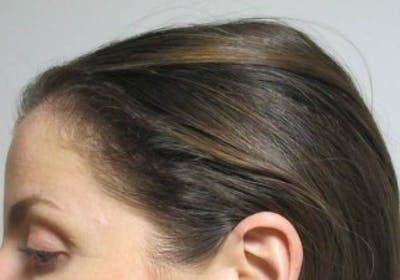 Hair Transplant Gallery - Patient 25274669 - Image 2