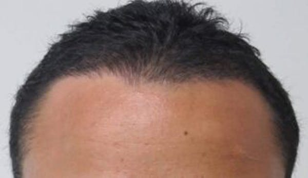 Hair Transplant Gallery - Patient 25274670 - Image 1