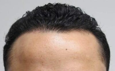 Hair Transplant Gallery - Patient 25274670 - Image 2