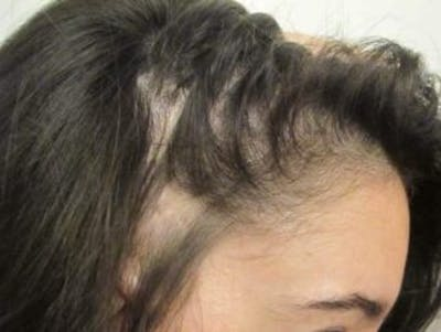 Hair Transplant Gallery - Patient 25274672 - Image 1