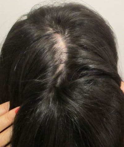 Hair Transplant Gallery - Patient 25274673 - Image 1
