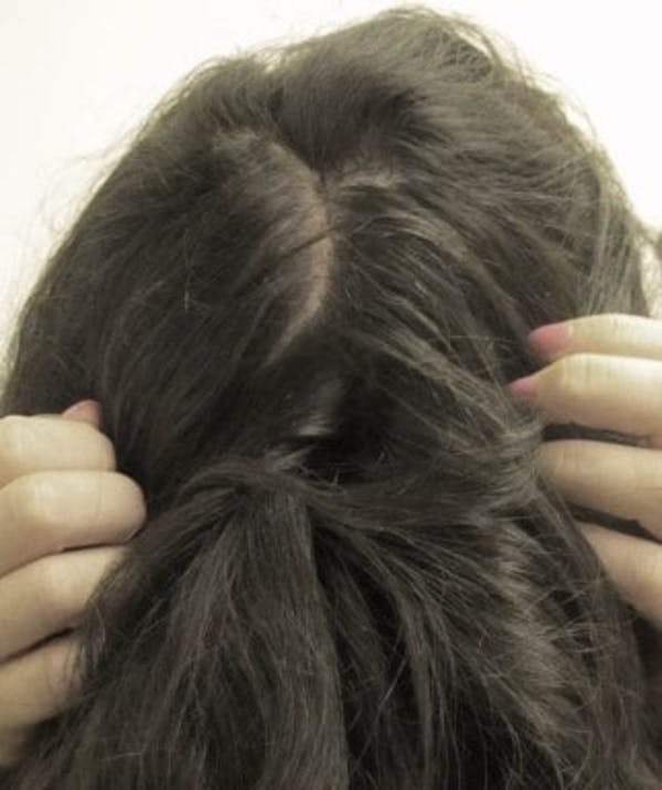 Hair Transplant Gallery - Patient 25274673 - Image 2