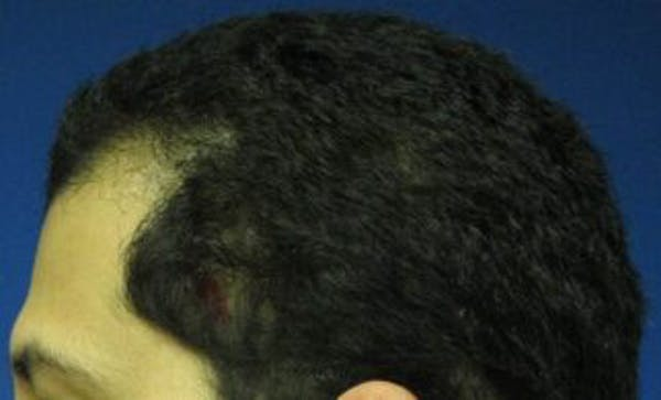 Hair Transplant Gallery - Patient 25274674 - Image 1