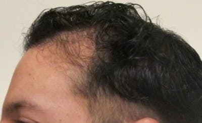 Hair Transplant Gallery - Patient 25274677 - Image 1