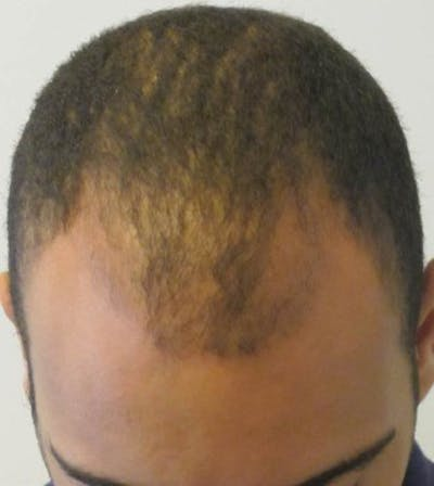 Hair Transplant Gallery - Patient 25274682 - Image 1
