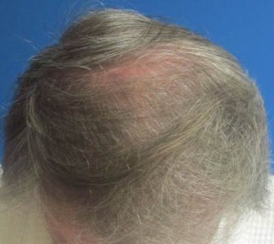 Hair Transplant Gallery - Patient 25274683 - Image 1
