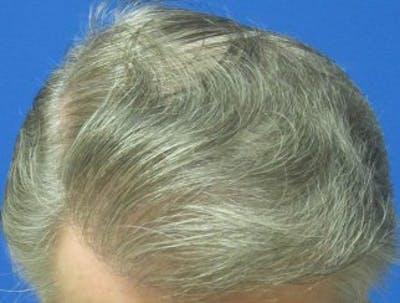 Hair Transplant Gallery - Patient 25274683 - Image 2