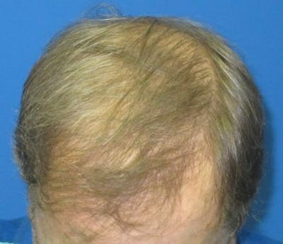 Hair Transplant Gallery - Patient 25274684 - Image 2