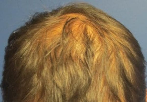 Hair Transplant Gallery - Patient 25274685 - Image 1