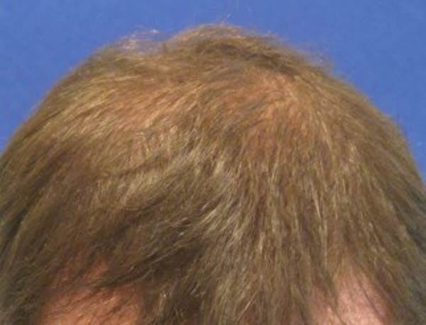 Hair Transplant Gallery - Patient 25274685 - Image 2