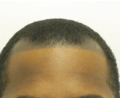 Hair Transplant Gallery - Patient 25274690 - Image 1