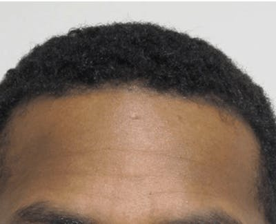Hair Transplant Gallery - Patient 25274690 - Image 2