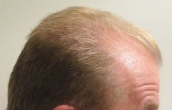 Hair Transplant Gallery - Patient 25274695 - Image 1
