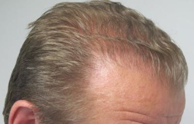 Hair Transplant Gallery - Patient 25274695 - Image 2
