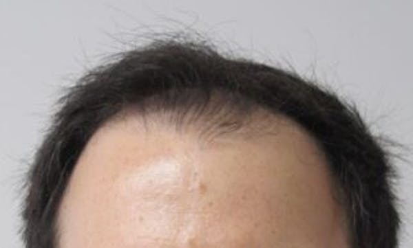 Hair Transplant Gallery - Patient 25274704 - Image 1