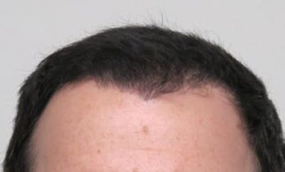 Hair Transplant Gallery - Patient 25274704 - Image 2