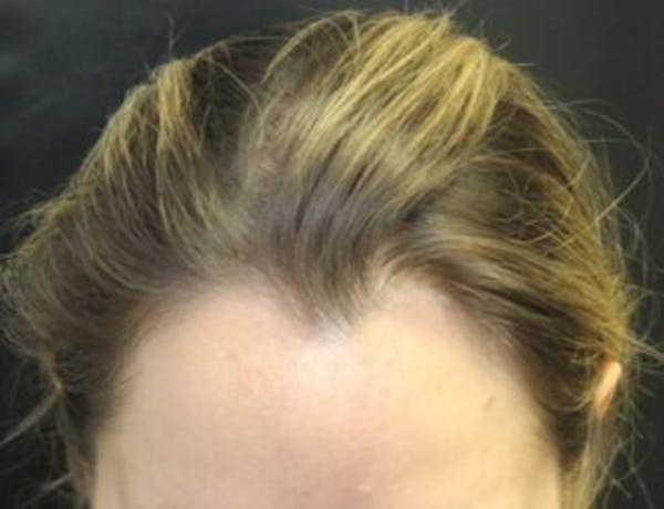 Hair Transplant Gallery - Patient 25274707 - Image 1