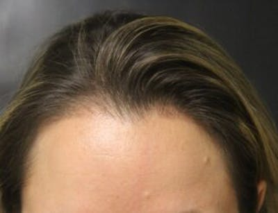 Hair Transplant Gallery - Patient 25274707 - Image 2