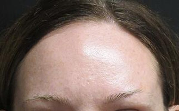 Hair Transplant Gallery - Patient 25274713 - Image 1