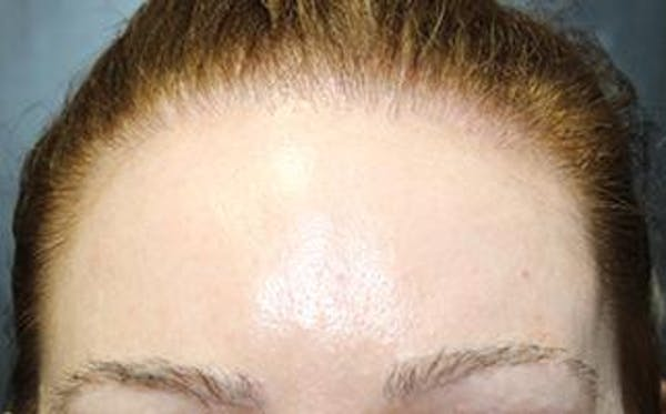 Hair Transplant Gallery - Patient 25274713 - Image 2