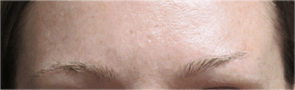 Hair Transplant Gallery - Patient 25274715 - Image 1