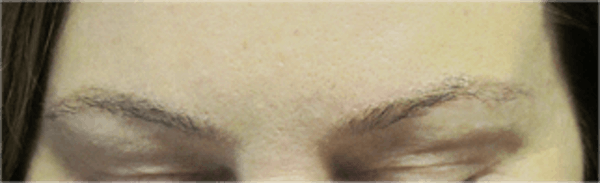 Hair Transplant Gallery - Patient 25274715 - Image 2
