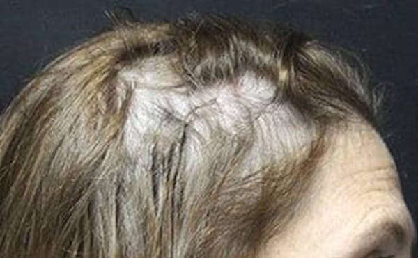 Hair Transplant Gallery - Patient 25274716 - Image 1