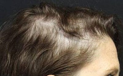 Hair Transplant Gallery - Patient 25274716 - Image 2