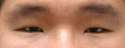 Asian Eyelid Surgery Gallery - Patient 25274762 - Image 1