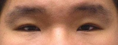Asian Eyelid Surgery Gallery - Patient 25274762 - Image 2