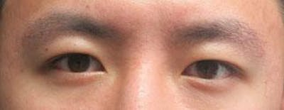 Asian Eyelid Surgery Gallery - Patient 25274765 - Image 1