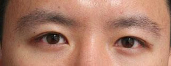 Asian Eyelid Surgery Gallery - Patient 25274765 - Image 2