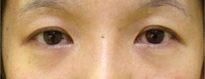 Asian Eyelid Surgery Gallery - Patient 25274768 - Image 1