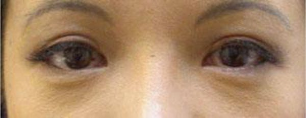 Asian Eyelid Surgery Gallery - Patient 25274768 - Image 2