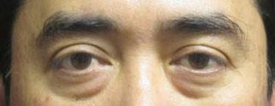 Asian Eyelid Surgery Gallery - Patient 25274769 - Image 1