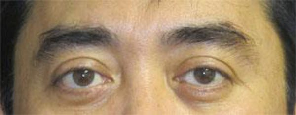 Asian Eyelid Surgery Gallery - Patient 25274769 - Image 2