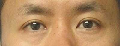 Asian Eyelid Surgery Gallery - Patient 25274770 - Image 1