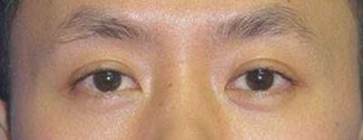 Asian Eyelid Surgery Gallery - Patient 25274770 - Image 2