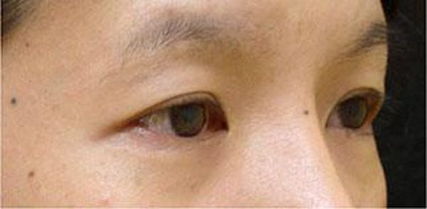 Asian Eyelid Surgery Gallery - Patient 25274771 - Image 1