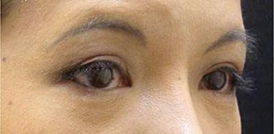 Asian Eyelid Surgery Gallery - Patient 25274771 - Image 2