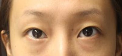 Asian Eyelid Surgery Gallery - Patient 25274773 - Image 1