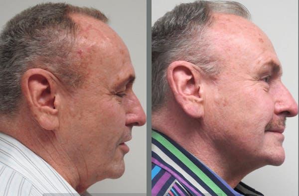 Facelift & Necklift Gallery - Patient 54030914 - Image 1