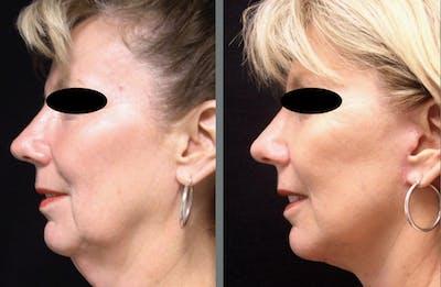 Facelift & Necklift Gallery - Patient 54030916 - Image 1