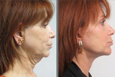 Facelift & Necklift Gallery - Patient 54030918 - Image 1
