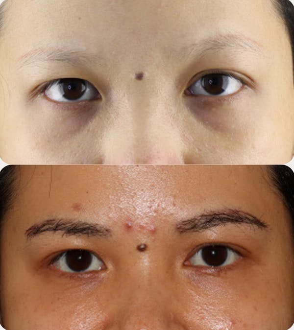Hair Transplant Gallery - Patient 54187627 - Image 1