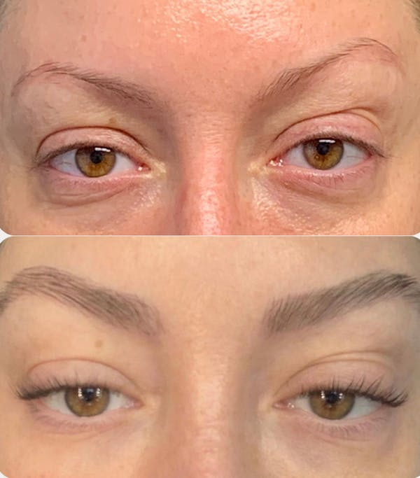 Hair Transplant Gallery - Patient 54187628 - Image 1