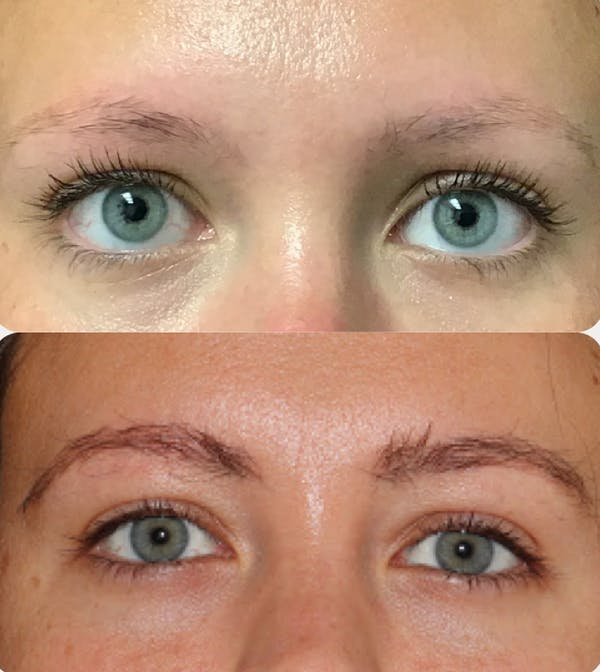 Hair Transplant Gallery - Patient 54187630 - Image 1